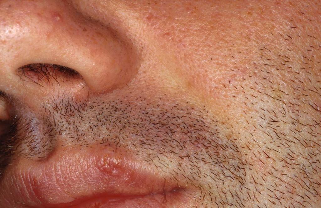 Posti sulla faccia e su un dorso un forum