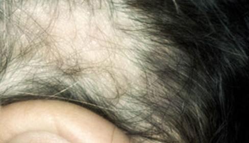 Alopecia da frizione in lattante