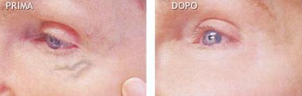 capillari viso